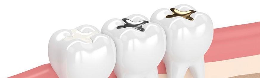 فروشگاه 32 | مواد ترمیمی دندانپزشکی